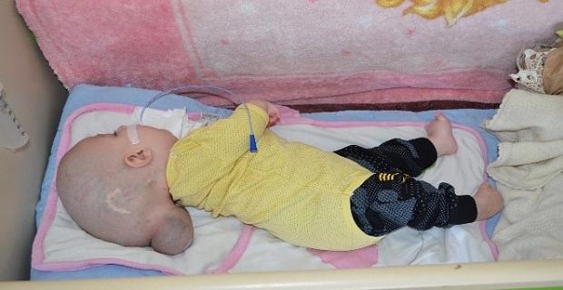 12 aylık Adilcevaz'lı Yunus Emre'nin yürek burkan dramı